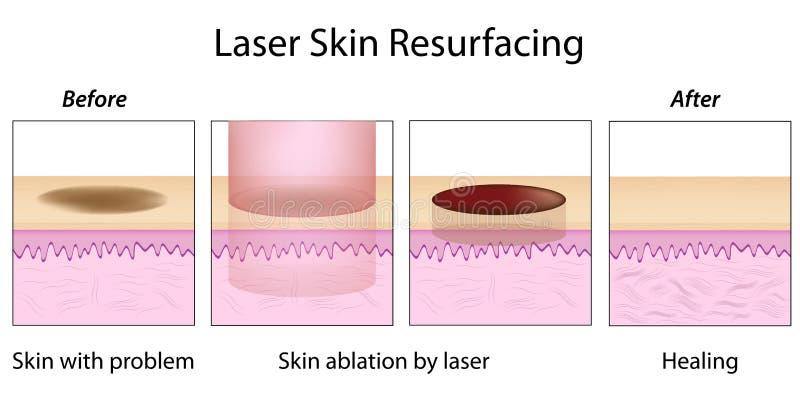 Laserowy TARGET919_0_ Skóry ilustracji