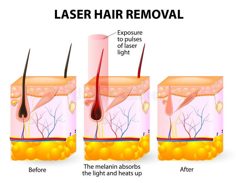 Laserowy włosiany usunięcie. Wektorowy diagram royalty ilustracja