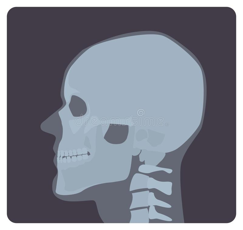 Lateral radiograph of skull. X-ray picture or radiographic image of head, side view. Modern medical radiography and stock illustration