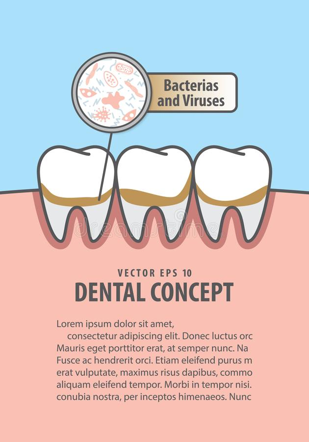 Layout Bacterias and viruses with dirty teeth illustration vector on blue background. Dental concept. royalty free illustration