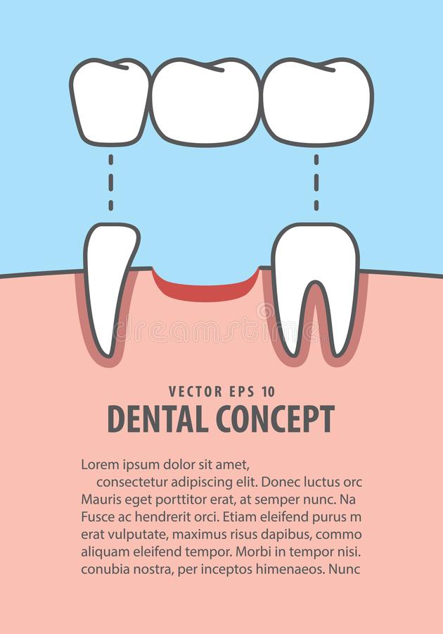 Layout Bridges teeth real root illustration vector on blue background. Dental concept. royalty free illustration