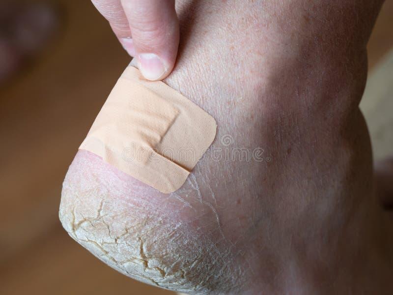 Le bandage adhésif ferme le calus sur le talon photos libres de droits