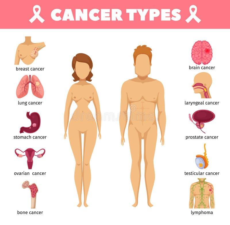 Le Cancer dactylographie les icônes plates illustration libre de droits