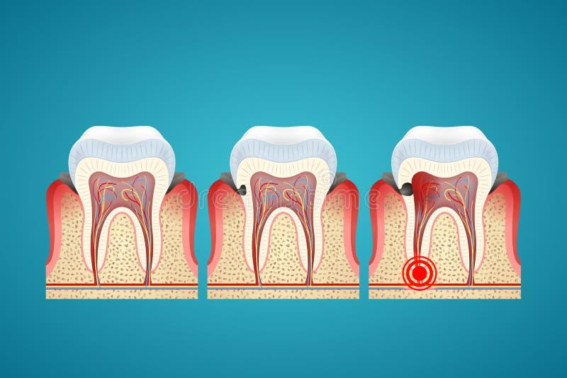 Le carie di progresso delle fasi sui denti umani e sulla malattia gommano royalty illustrazione gratis
