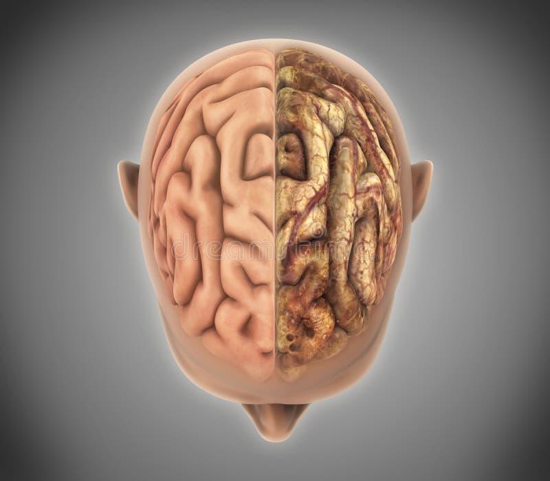 Le cerveau sain et le cerveau malsain illustration libre de droits