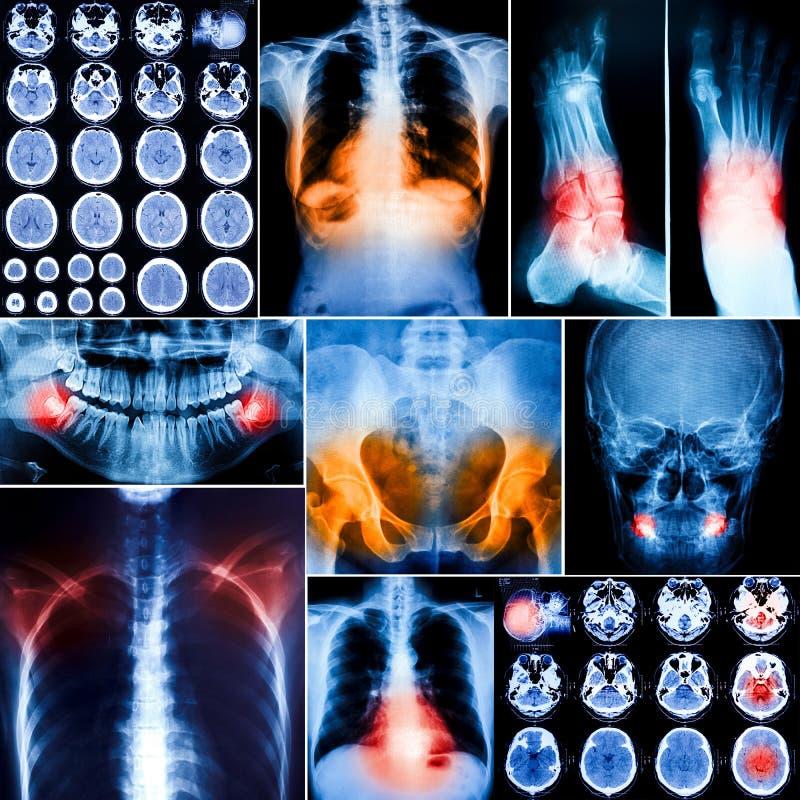 Le collage de l'humain radiographie la photo photos libres de droits