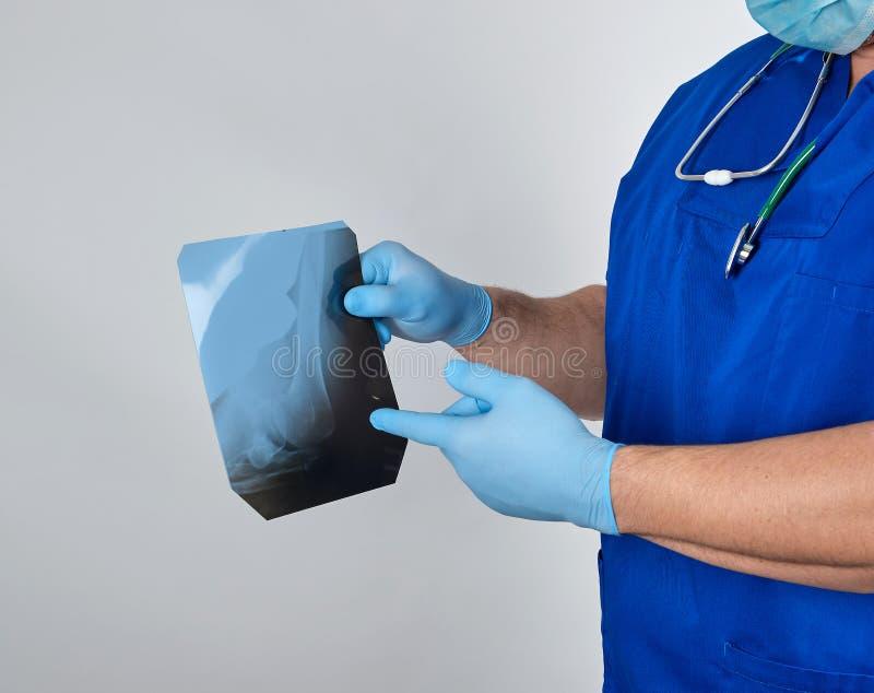 le docteur dans l'uniforme bleu et les gants stériles de latex tient et examine le rayon X de l'os de jambe image stock