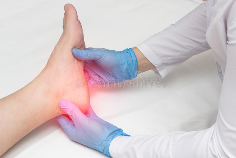 Le docteur examine la jambe du talon de femme pour des dents de talon, douleur dans le pied, fasciitis plantaire, osteophyte images libres de droits