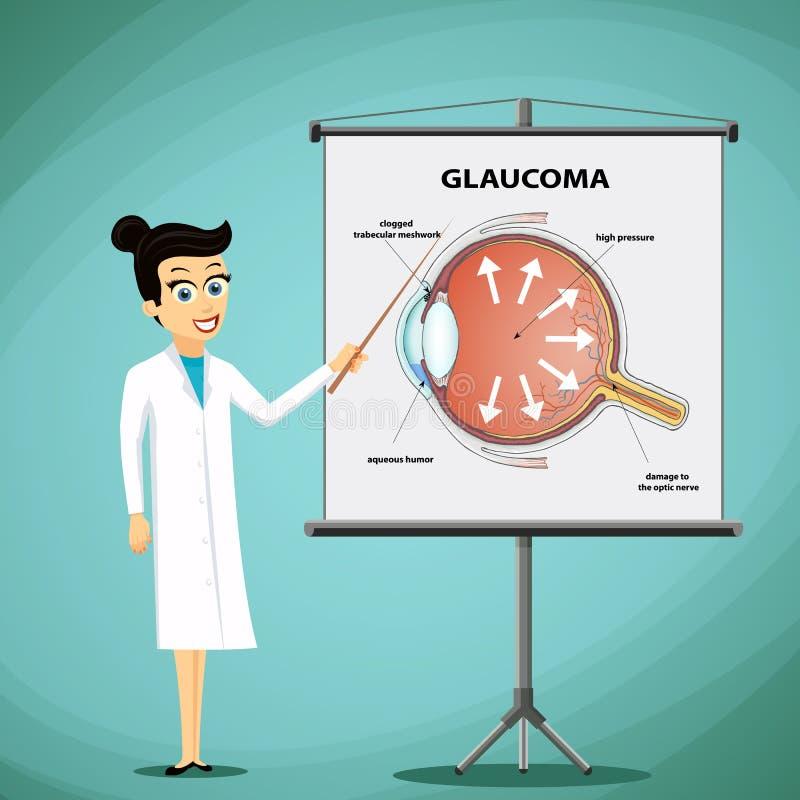 Le docteur montre sur un diagramme de tableau noir de l'oeil humain glaucome illustration stock