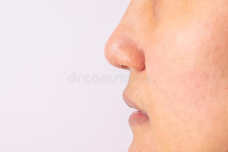 Le donne allergiche hanno il naso e labbra asciutti dell'eczema sul primo piano di stagione invernale fotografie stock libere da diritti