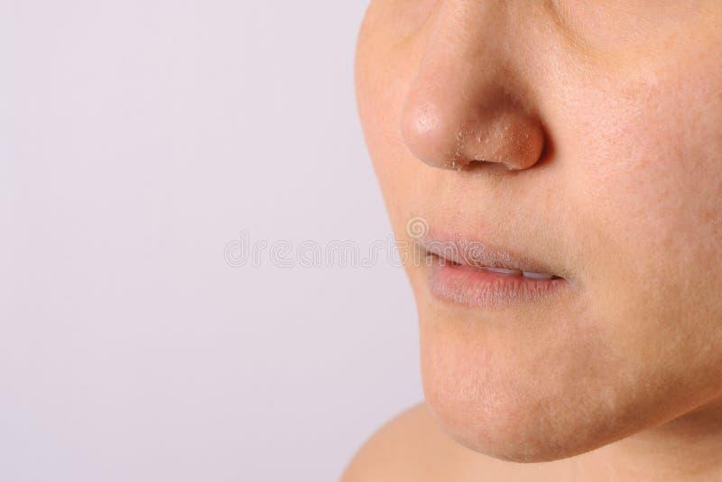 Le donne allergiche hanno il naso e labbra asciutti dell'eczema sul primo piano di stagione invernale immagine stock