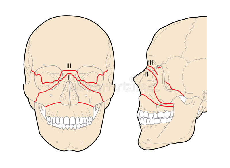 Le Fort skull fractures stock illustration