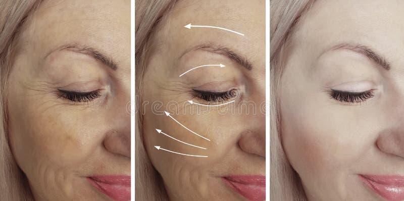 Le grinze della donna affrontano il ringiovanimento prima e dopo il collage del trattamento di correzione immagine stock libera da diritti