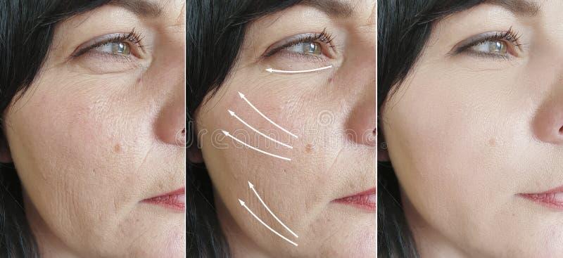 Le grinze della donna affrontano la tensione di sollevamento del collage della freccia prima e dopo il trattamento di contrasto fotografie stock