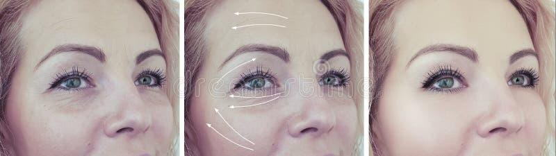Le grinze della donna affrontano prima dei trattamenti dell'età del collage della dermatologia dell'occhio fotografie stock libere da diritti