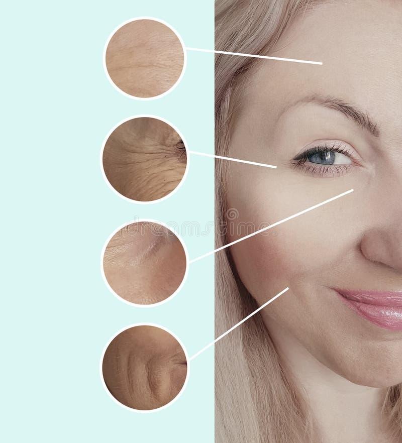 Le grinze della donna affrontano prima della differenza invecchiante di correzione del trattamento di terapia matura dopo il coll fotografia stock