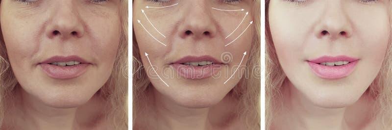 Le grinze della donna affrontano prima e dopo i trattamenti dell'età del collage immagine stock