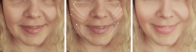 Le grinze della donna affrontano prima ed i trattamenti dell'età del collage del afte r fotografia stock libera da diritti