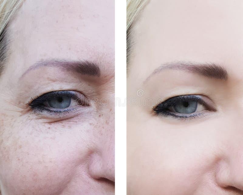Le grinze della donna del fronte osservano prima e dopo il trattamento di rimozione, la pigmentazione fotografia stock
