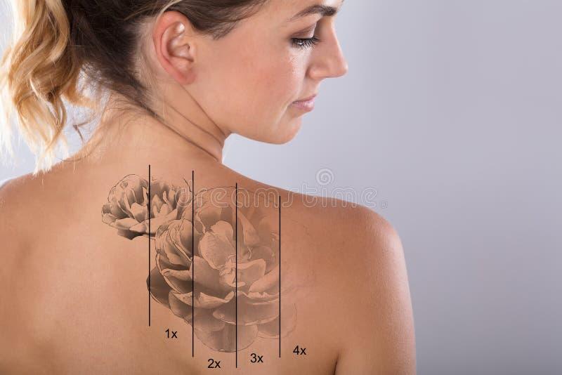 Le laser tatouent le retrait sur l'épaule du ` s de femme image stock