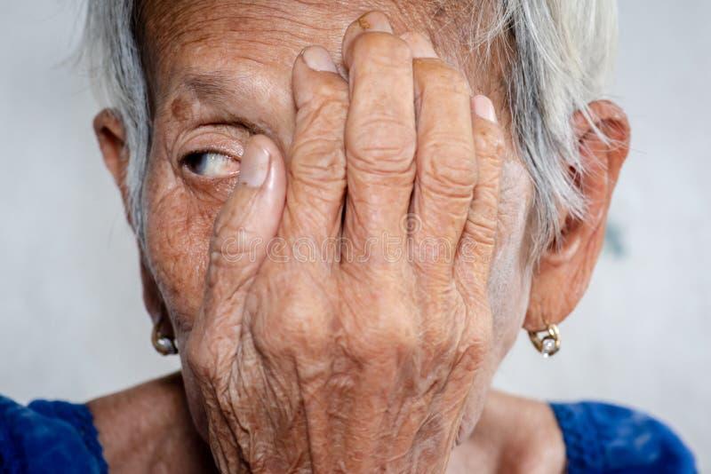 Le lonelydementia de dame âgée et l'Alzheimer de abattage, la maladie image stock