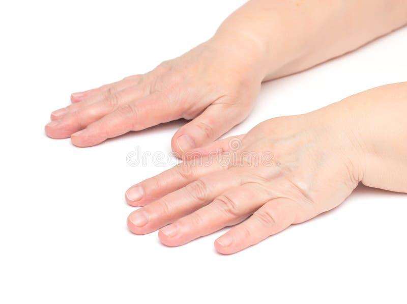Le mani di una donna anziana su un fondo bianco che ha i problemi, l'irritazione e rossore di pelle sulla pelle, ipoallergeniche immagine stock libera da diritti