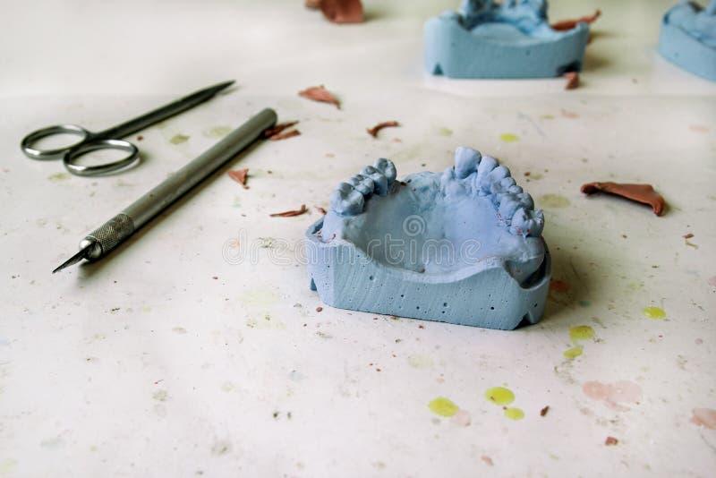 Le modèle de plâtre des mâchoires avec les ciseaux et le scalpel t dentaire image stock