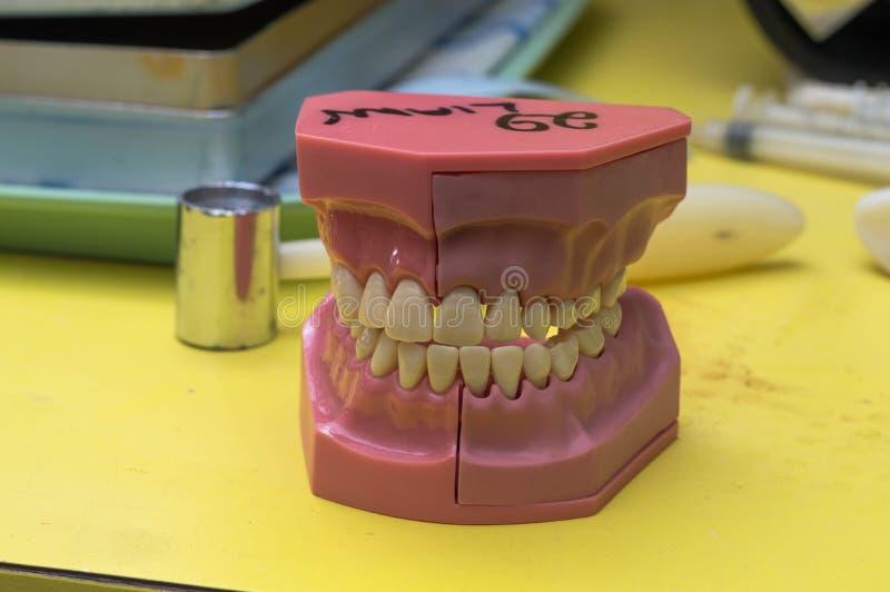 Le moule dentaire a abandonné le bureau de dentistes photos libres de droits