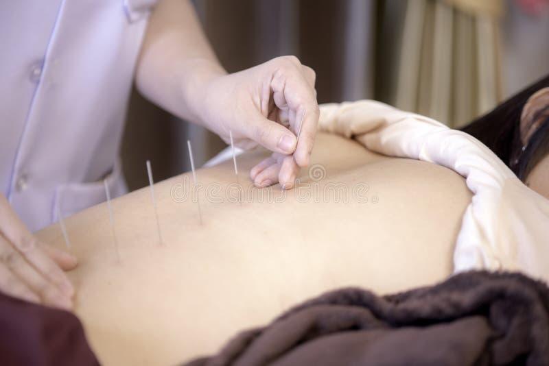 Le physiothérapeute fait l'acuponcture au dos d'une femelle photographie stock libre de droits