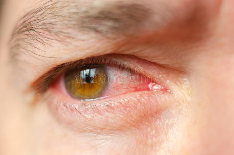 Le plan rapproché a irrité les yeux injectés de sang rouges infectés, conjonctivite photo stock