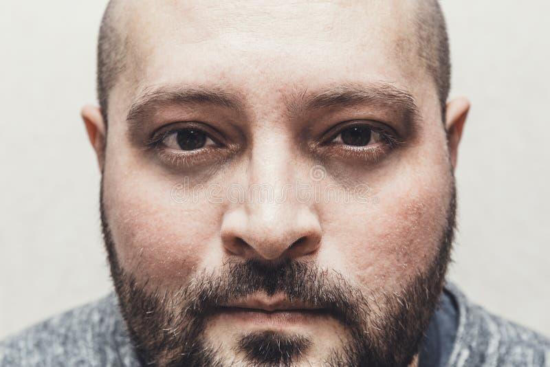 Le portrait de l'homme triste fatigué soumis à une contrainte avec des sacs sous des yeux regarde le concept d'appareil-photo, d' images libres de droits