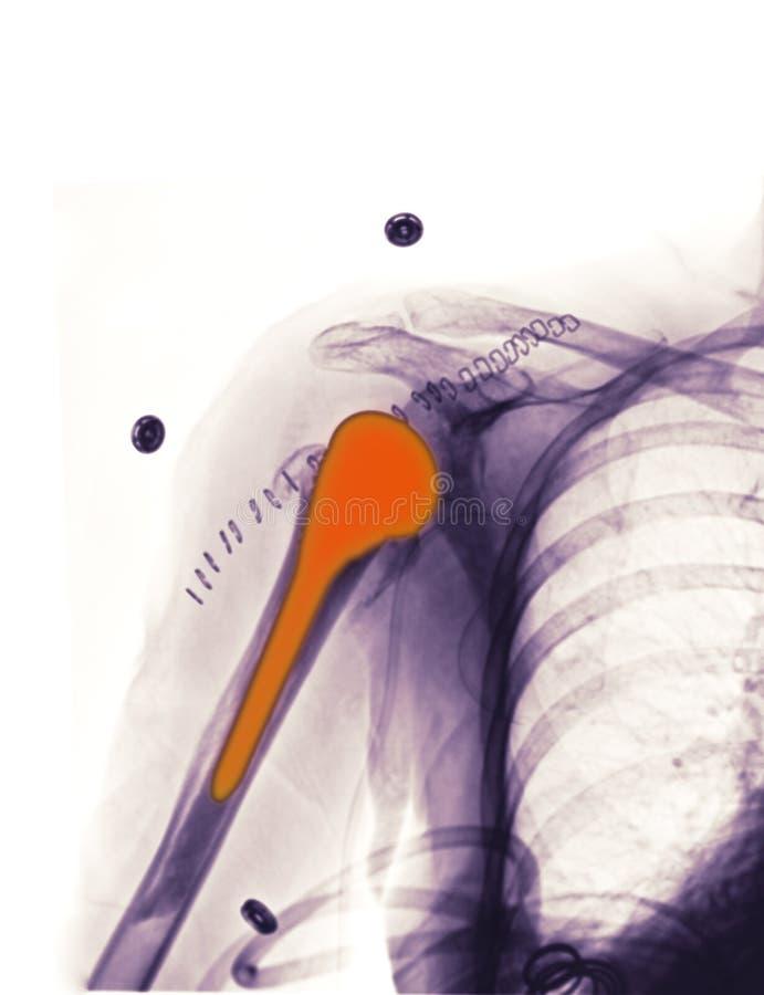 Le rayon X affichant une épaule replacemen photographie stock