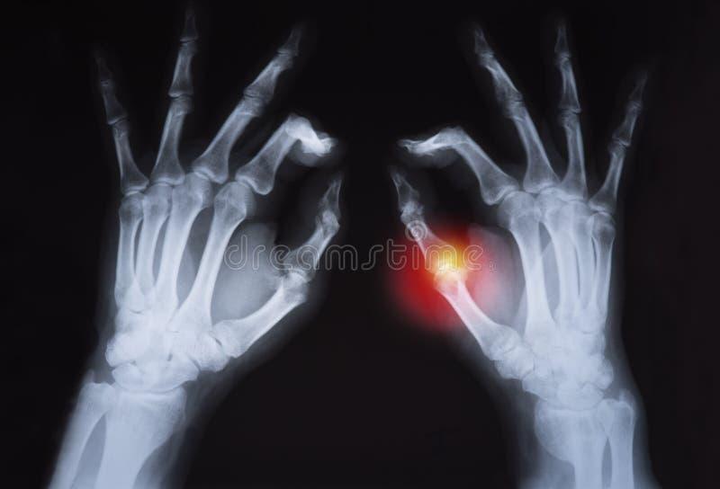 Le rayon de x de la main de l'humain a accentué en rouge photographie stock libre de droits