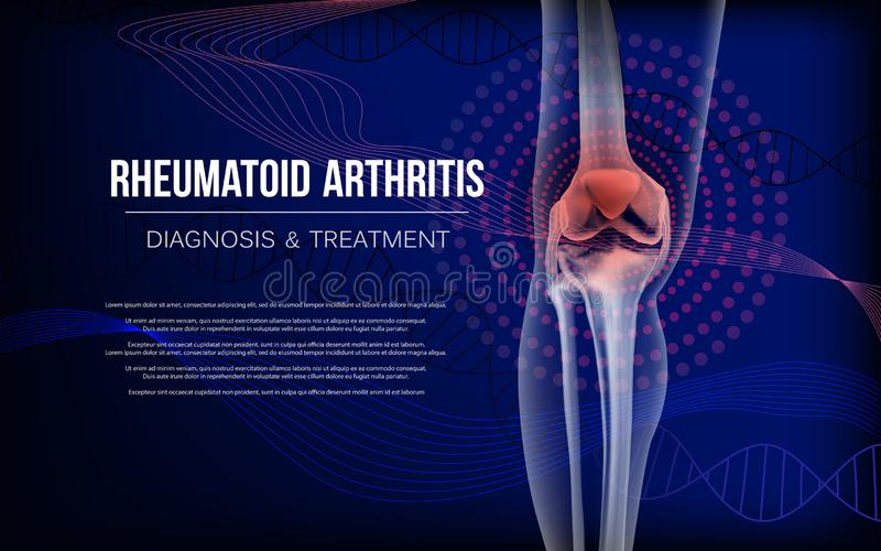 Le rhumatisme articulaire désosse du genou illustration stock
