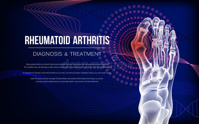 Le rhumatisme articulaire désosse du pied illustration stock