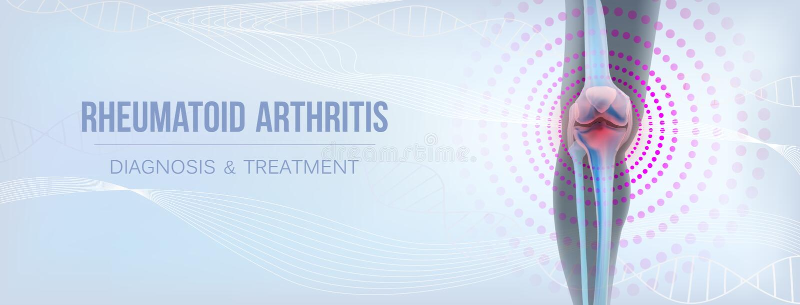 Le rhumatisme articulaire léger vertical désosse du genou illustration stock