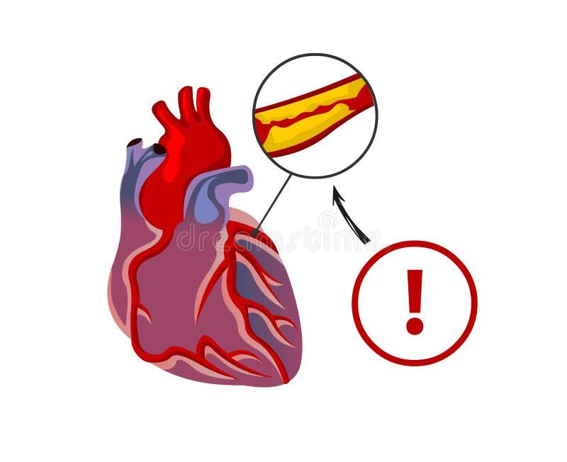 Le risque d'arrêt du coeur illustration de vecteur