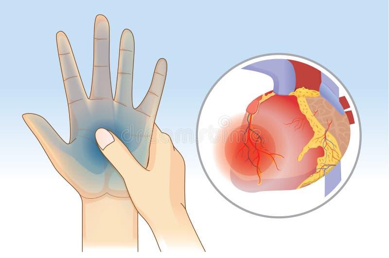 Le symptôme de faiblesse de main peut être provoqué par maladie cardiaque illustration libre de droits
