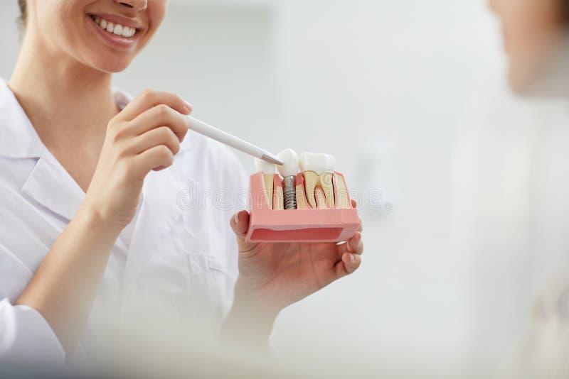 Le tandläkaren Explaining Tooth Implantation arkivbild