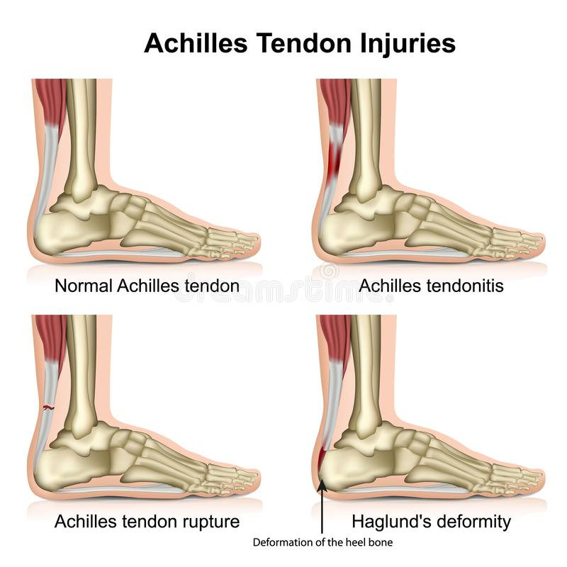 Le tendon d'Achille blesse l'illustration médicale de vecteur d'isolement sur le fond blanc avec la description anglaise illustration libre de droits