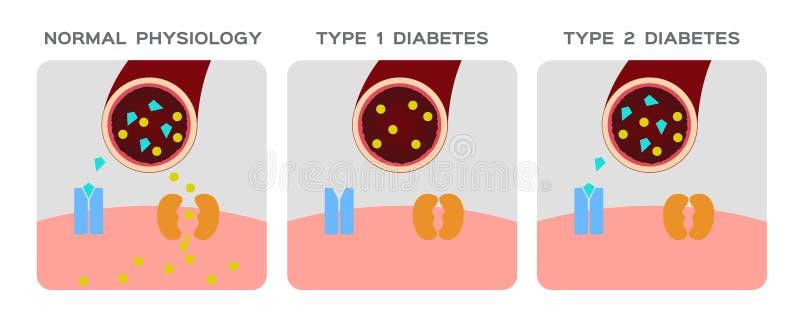 Le type d'insuline/physiologie normale, diabète/ouvre le graphique d'animation de canal de glucose du ` s de cellules illustration stock