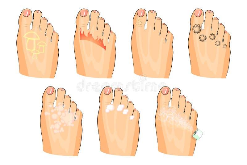 Le varie lesioni dei piedi fungo, combustione, verruche, sudorazione così come sapone, lozione e spruzzo royalty illustrazione gratis