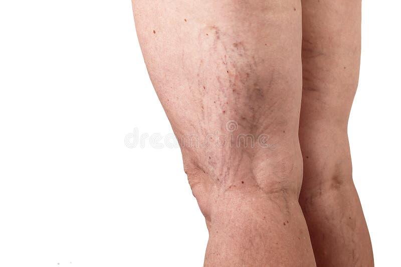 Le vene varicose di malattia sulle gambe di una donna Priorità bassa bianca immagini stock libere da diritti