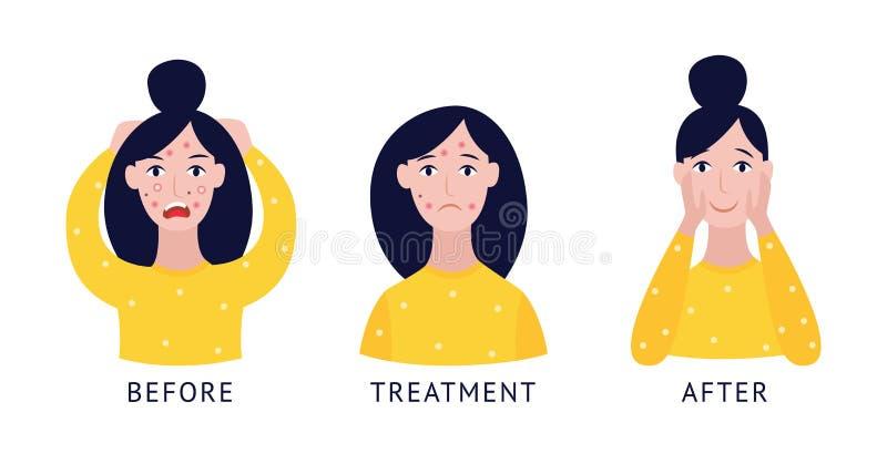 Le visage de femme avant et après l'illustration plate de vecteur de soin de traitement d'acné a isolé illustration de vecteur