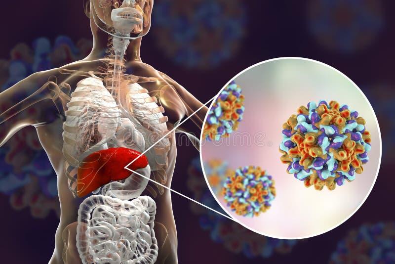 Leber mit Infektion der Hepatitis B und Großaufnahme von Viren der Hepatitis-B lizenzfreie abbildung