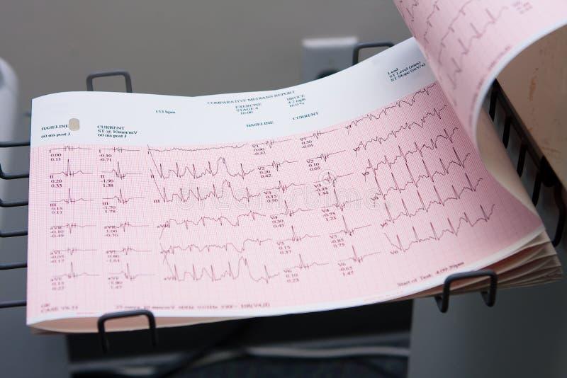 Lectura de papel 2 del electrocardiograma imágenes de archivo libres de regalías