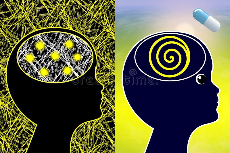 Leczenie epilepsja royalty ilustracja