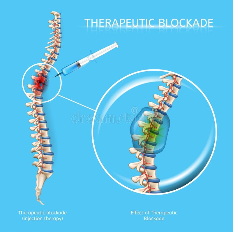 Leczniczy zablokowanie kręgosłup choroby Wektorowe ilustracji
