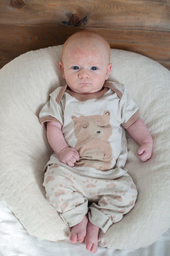 Ledsen pojke med atopic dermatit royaltyfri foto