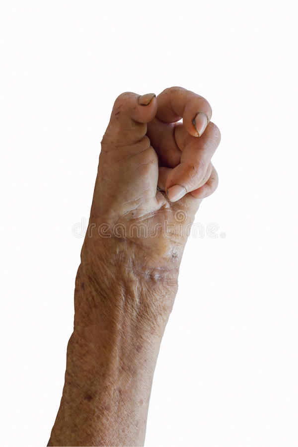 Free Left Hand Of A Leprosy Stock Photo - 39365700